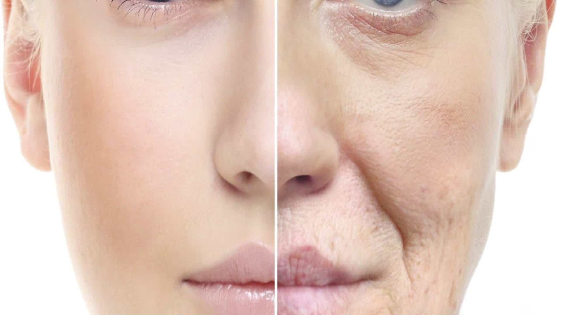 jonge huid