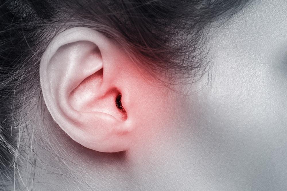 Tinnitus en oorsuizen